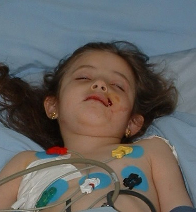 Five-year-old Batool lies in a hospital bed.