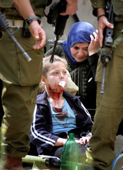 Eight-year-old Nisreen abu Hashash bleeds from being shot with a rubber bullet in the face by Israeli soldiers.